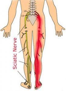 Understanding Sciatic Nerve Pain Sciatica Spine Orthopedic Center